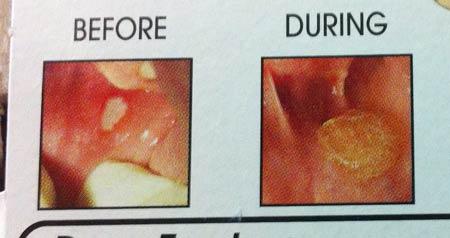 口内炎の治る過程