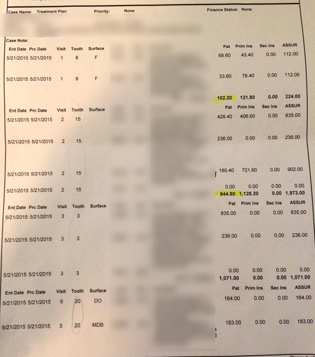アメリカの歯科治療費の例
