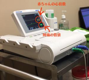 妊娠37週+6dのNST(ノンストレステスト)