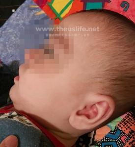 赤ちゃんの顔引っ掻き傷が治った画像
