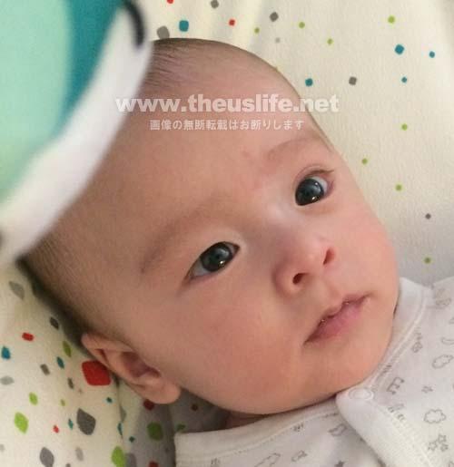 片目だけ二重まぶたに変化した生後二ヶ月の赤ちゃんの顔