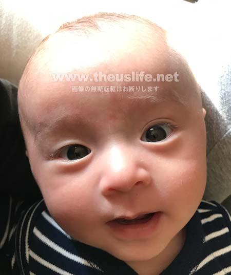 片目だけ二重まぶたの生後二ヶ月目の赤ちゃんの顔