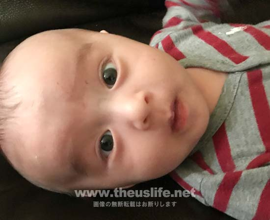 生後三ヶ月の日米ハーフの両目二重まぶたになった赤ちゃんの顔