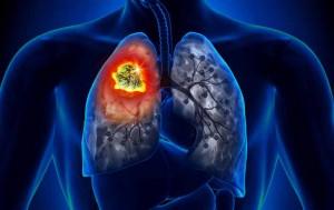 タバコの害による肺がんのイメージ