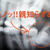 アメリカで親知らず抜歯体験… 初診から抜歯の流れ、費用など大公開!!