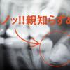 アメリカで親知らず抜歯体験…費用や術後の経過報告!!